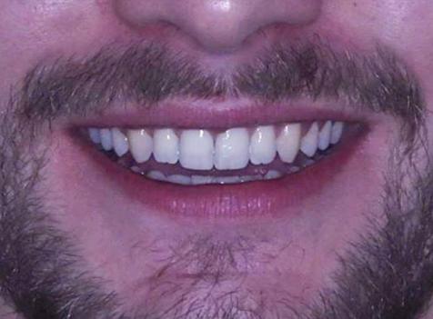 ayrık diş tedavisi sonrası