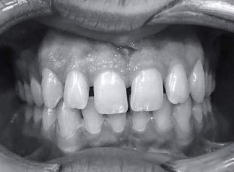 çarpık diş tedavisi öncesi