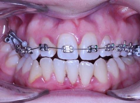 diş teli uygulaması