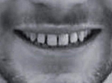 ayrık diş tedavisi öncesi