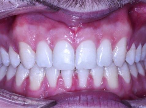 çarpık diş tedavisi sonrası